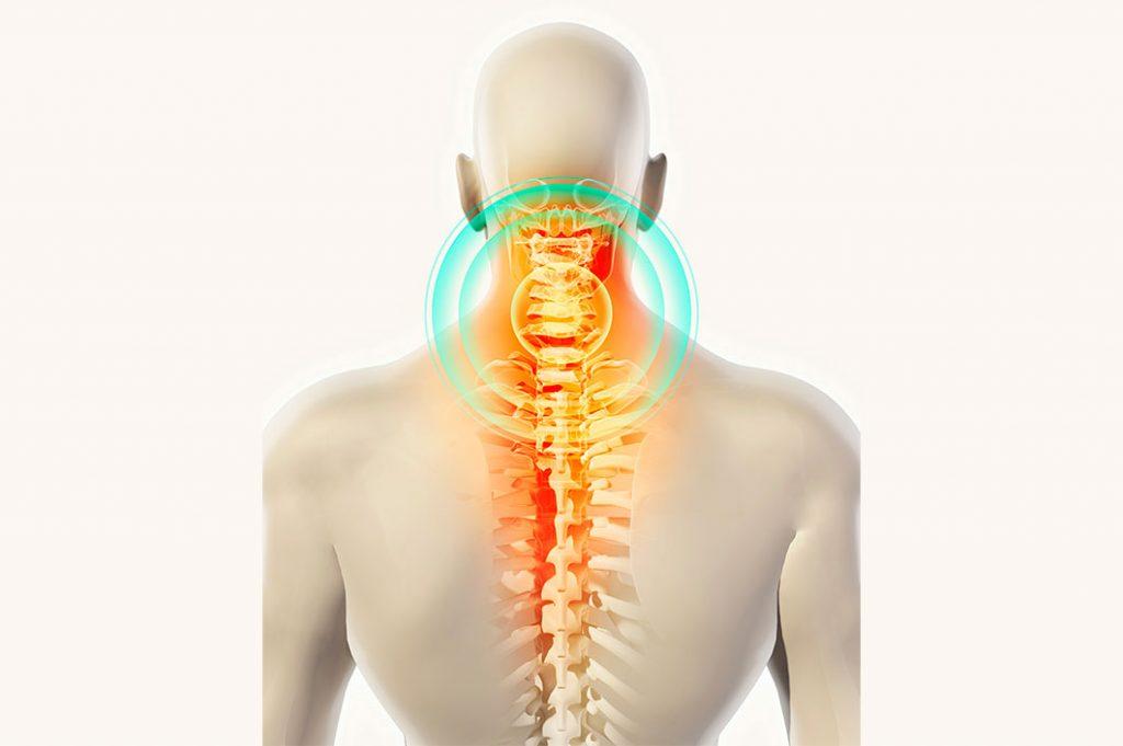 Симптомы и лечение спондилеза шейного, поясничного и грудного отделов