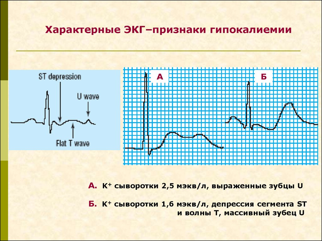 Гипокалиемия — википедия