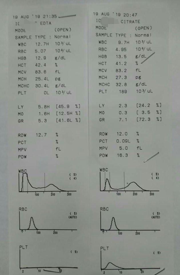 Этилендиаминтетраацетат кальция-натрия