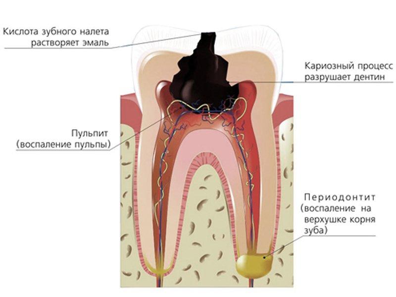 Пульпит зуба: что это такое, причины появления, диагностика и лечение