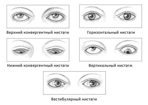 Что такое нистагм глаз?