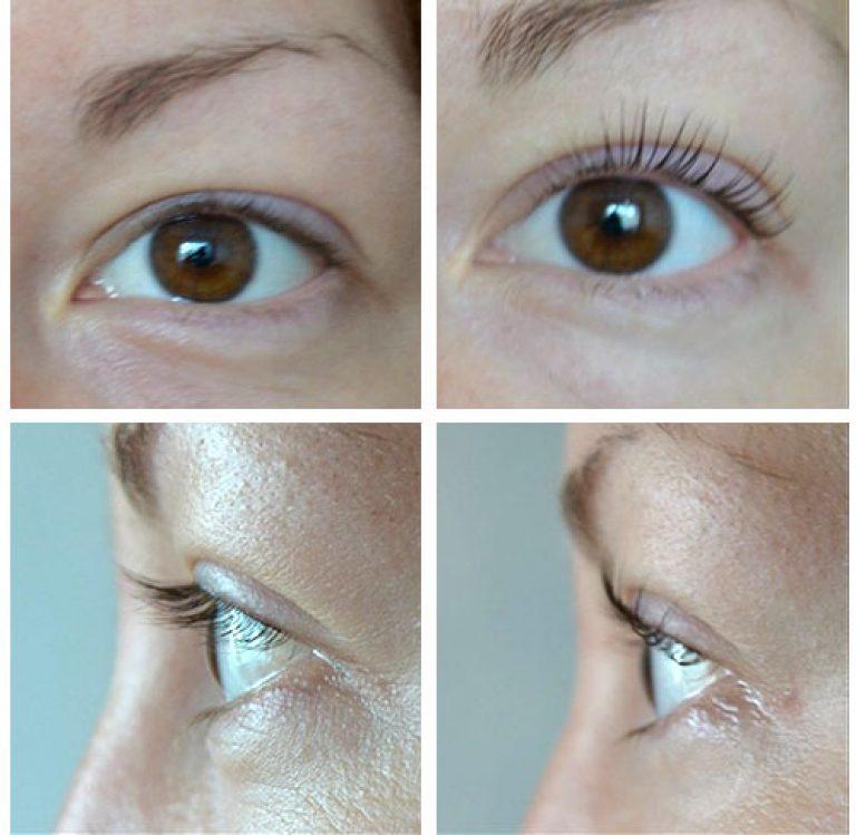 Красивые ресницы с ботоксом lash botox: особенности препарата и инструкция по применению