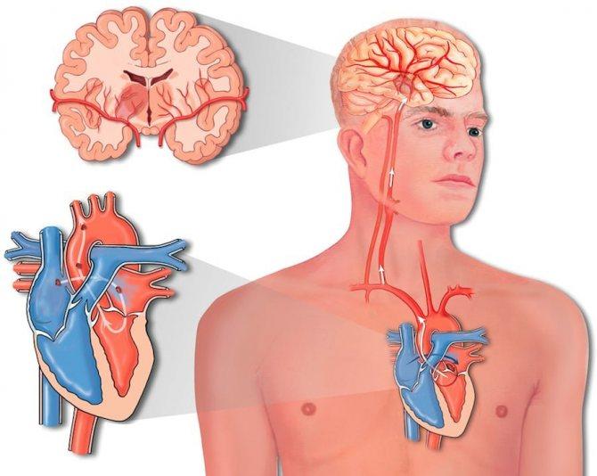 Чем отличается инфаркт от инсульта — заболевания сердца