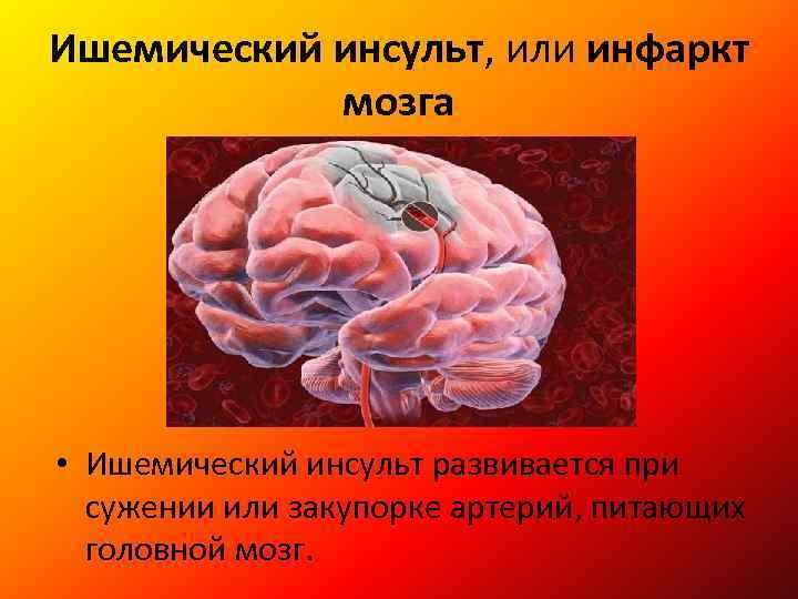 Инфаркт мозга причины возникновения