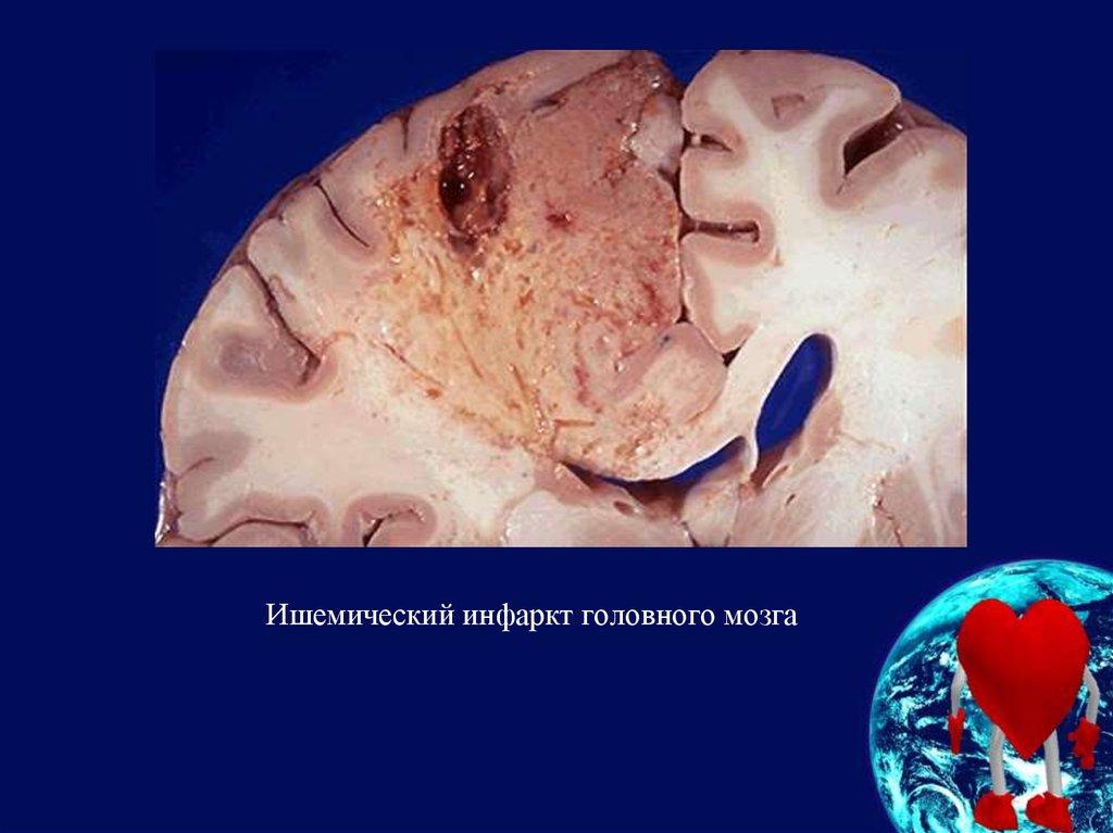 Инфаркт мозга причины возникновения | здоровье сердца