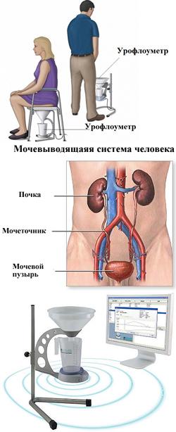 Урофлоуметрия - метод диагностики мочеполовой системы