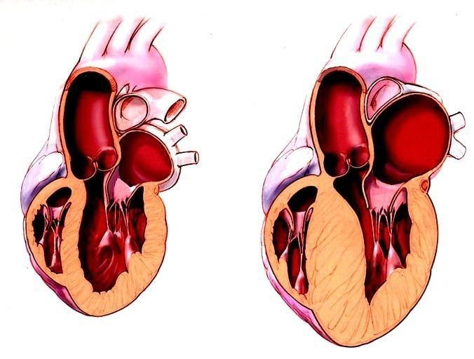 Что делать при кардиомегалии – последствия увеличения сердца