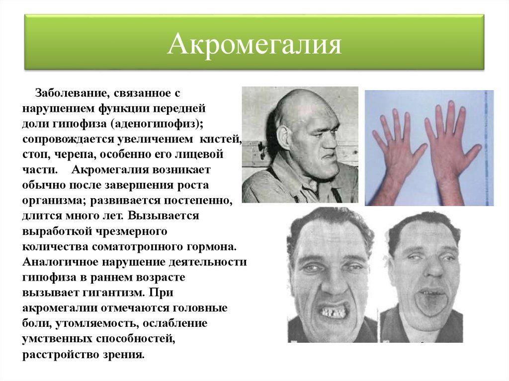 Акромегалия - причины, симптомы, лечение