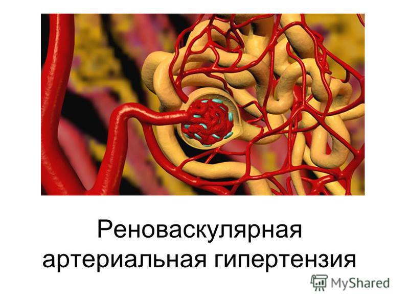 Эссенциальная и реноваскулярная артериальная гипертензия