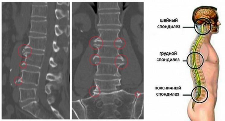 Спондилез шейного отдела позвоночника: описание, выявляем симптомы, основы лечения
