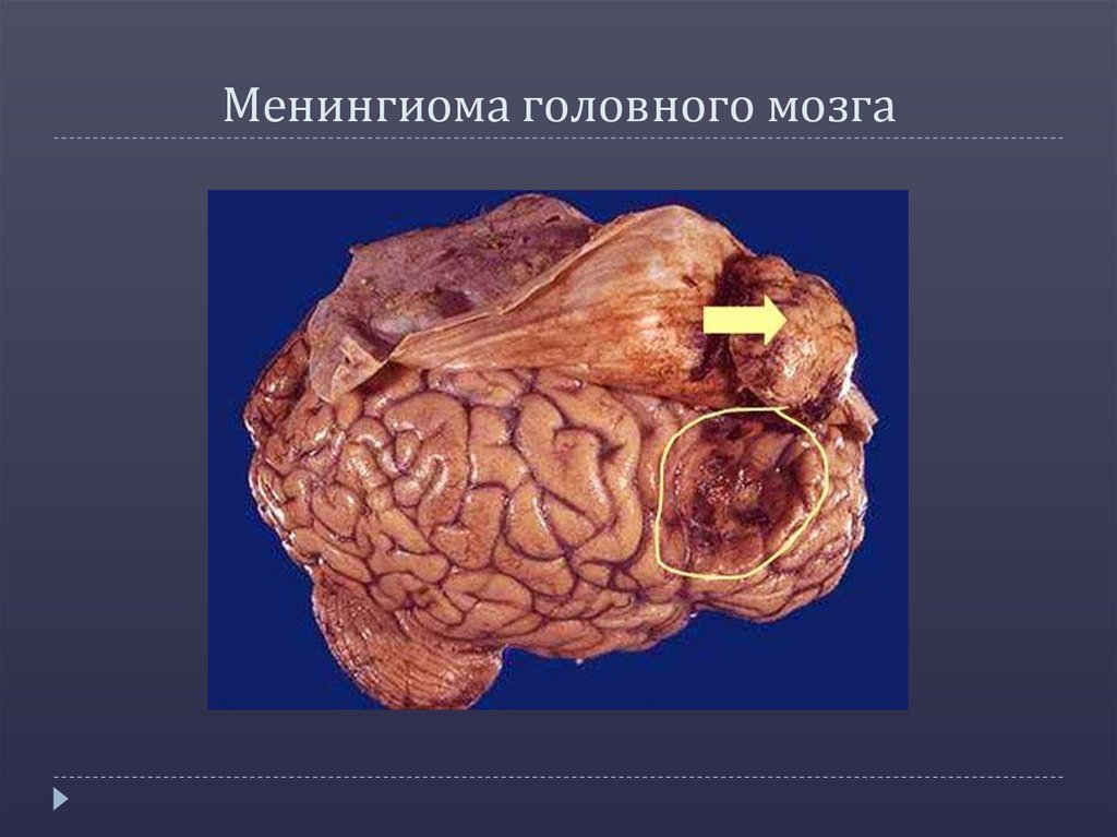 Менингиома — википедия с видео // wiki 2