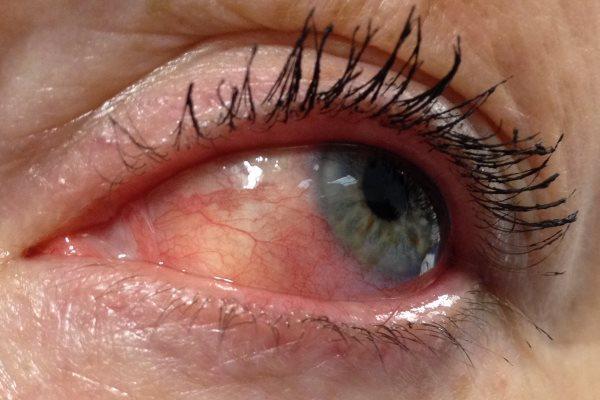 Склерит глаза