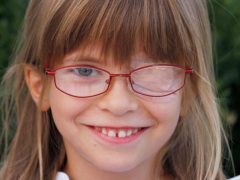 Амблиопия у детей: что это такое, лечение болезни глаз высокой степени в домашних условиях