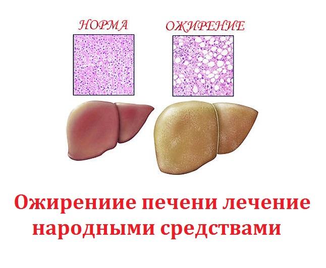 Что можно и нельзя есть , соблюдая диету при жировом гепатозе: стол № 5 и № 8