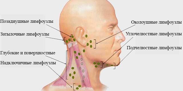 Лимфаденит у взрослых: виды, причины и симптомы лимфаденита у мужчин и женьщин