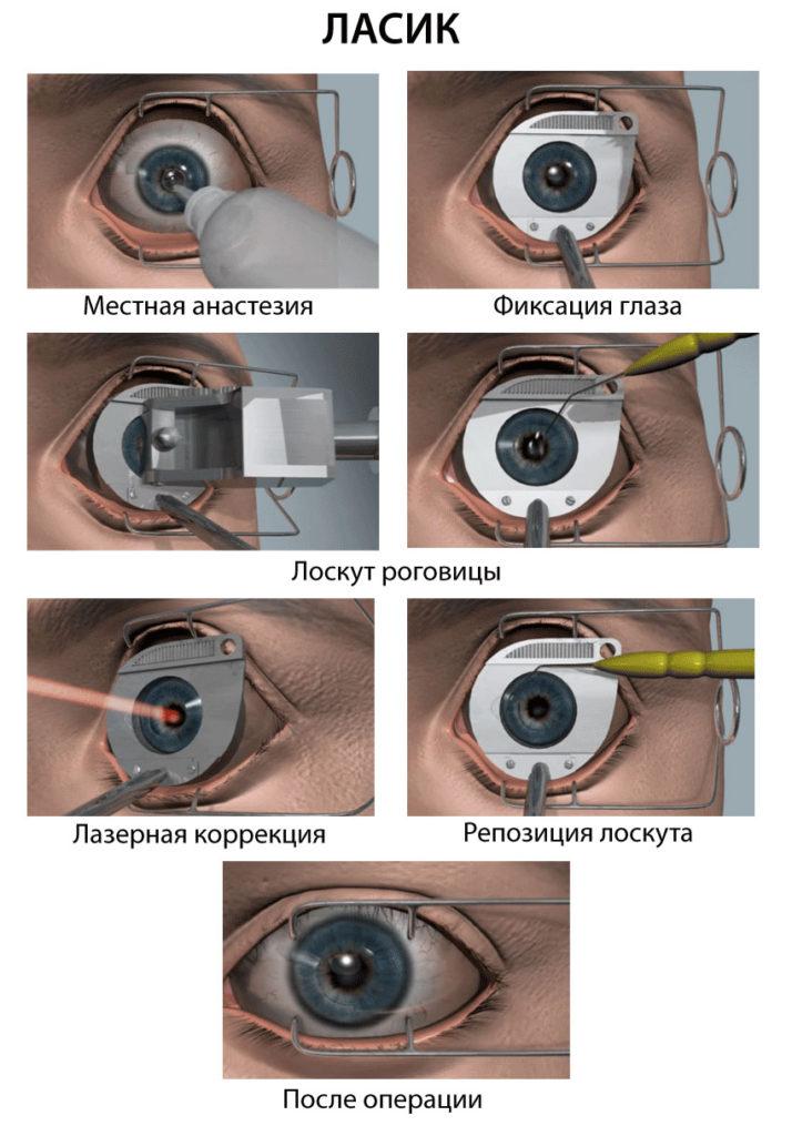 Артифакия глаза что это такое