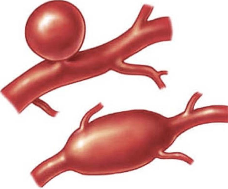Аневризма сосуда головного мозга: 4 признака, которые должен знать