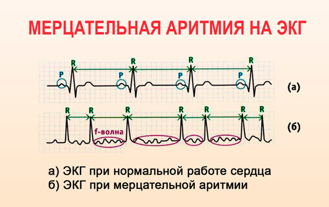 12 базовых препаратов от аритмии сердца: плюсы и минусы каждой таблетки