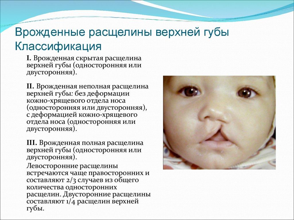 Заячья губа у детей: что это, как выглядит, причины, лечение, операция