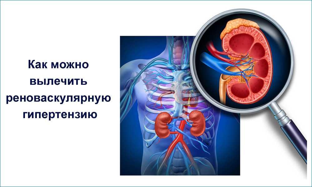 Реноваскулярная гипертензия: причины, особенности и лечение