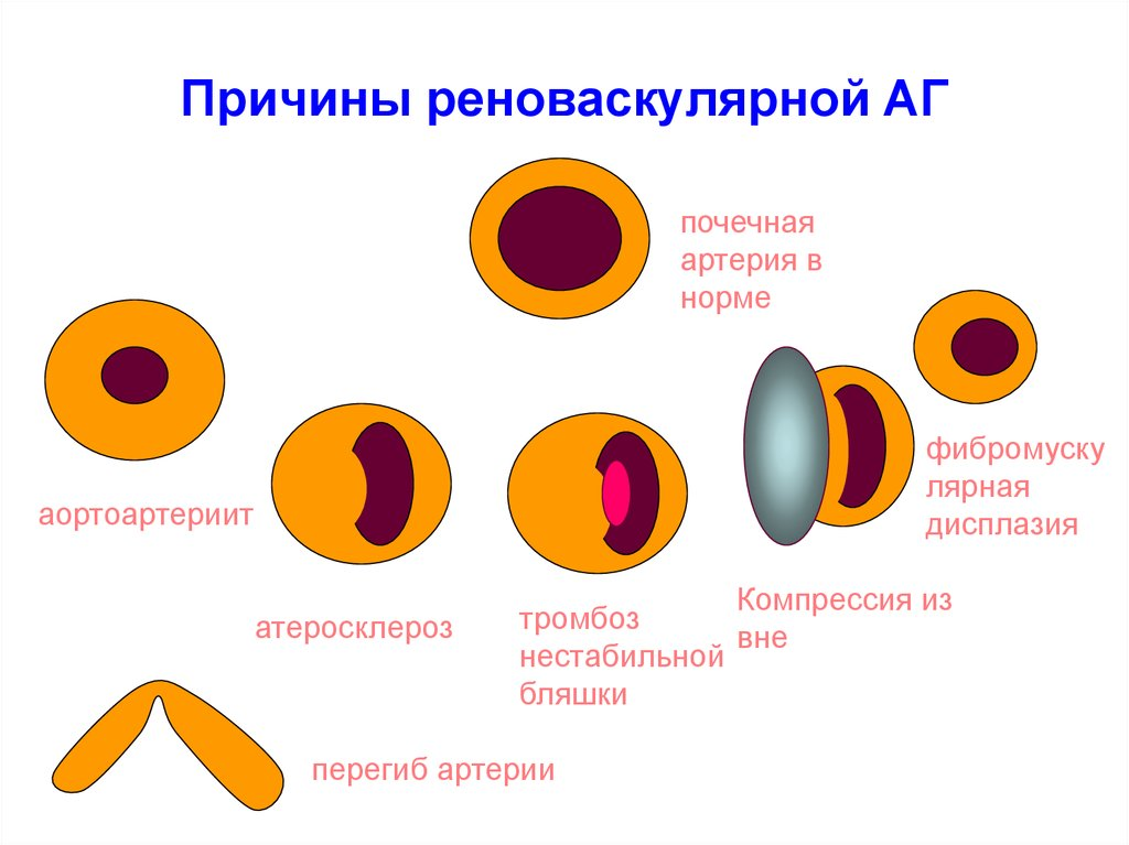Что представляет собой реноваскулярная (вазоренальная) гипертензия?