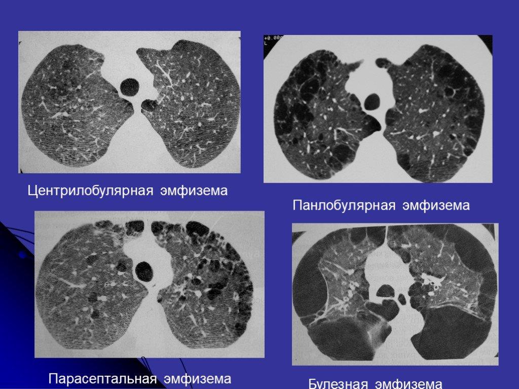 Эмфизема легких: что это такое и как лечить?