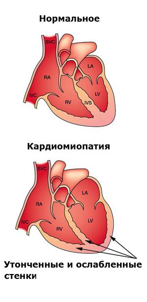Причина смерти — алкогольная кардиомиопатия