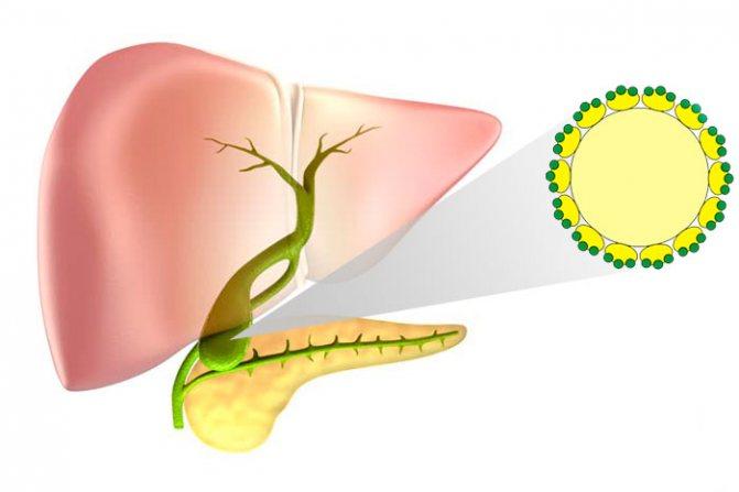 Как лечить билиарный сладж в желчном пузыре?