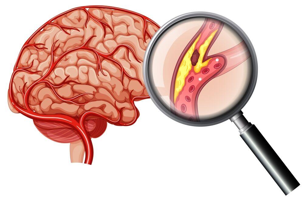 Церебральный атеросклероз: что это такое, симптомы, лечение, причины
