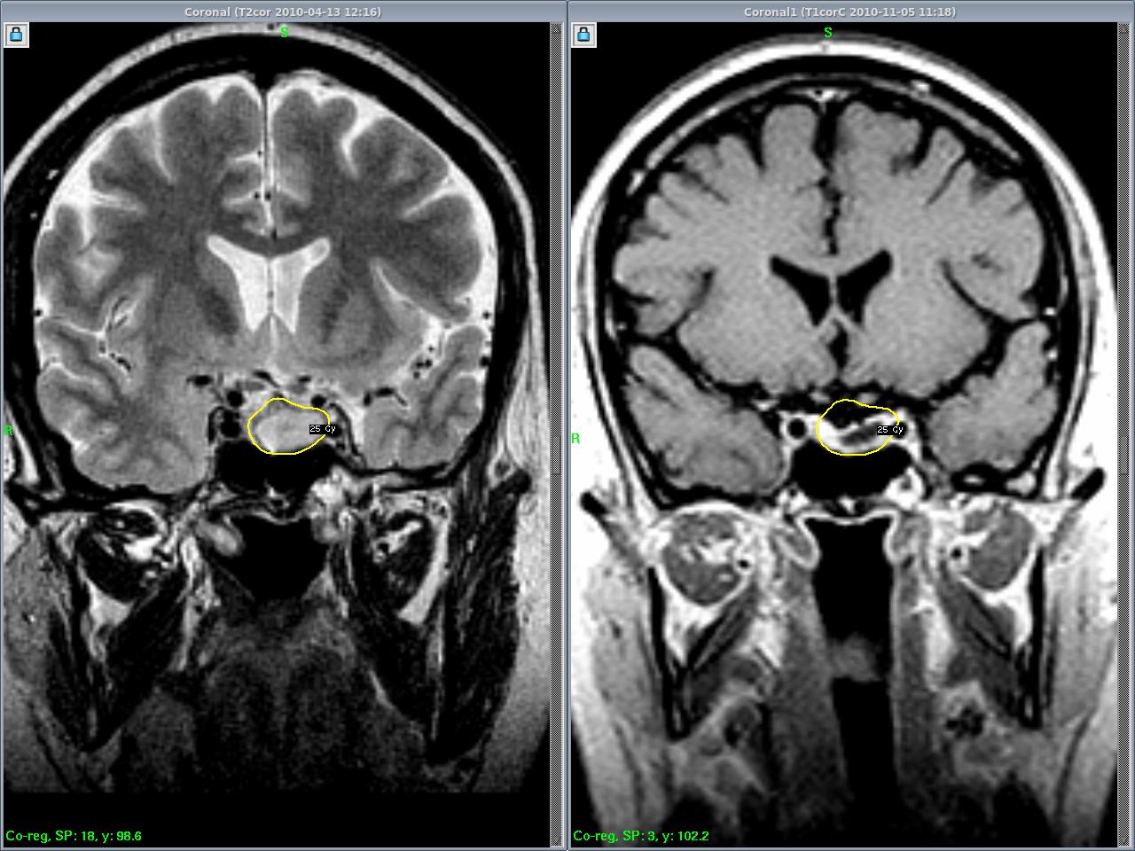 Аденома гипофиза головного мозга: операция по удалению и последствия