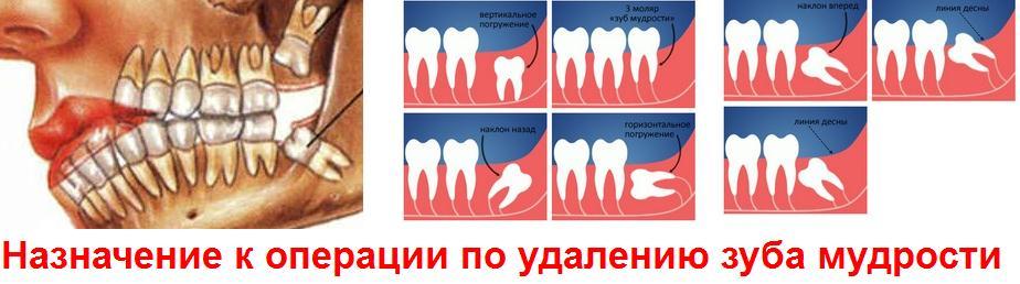 Зубы мудрости – когда растут, процесс прорезывания, проблемы роста
