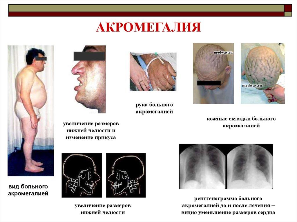 Акромегалия - что это? причины, симптомы, фото больных
