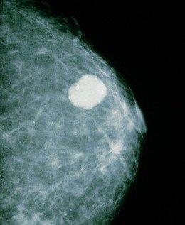 Чем опасна фиброаденома молочной железы и может ли она перерасти в злокачественную опухоль + какое отличие этой патологии от рака