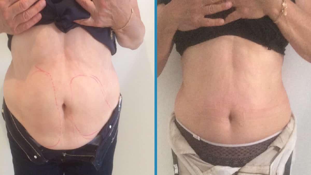 Криолиполиз: отзывы, фото до и после