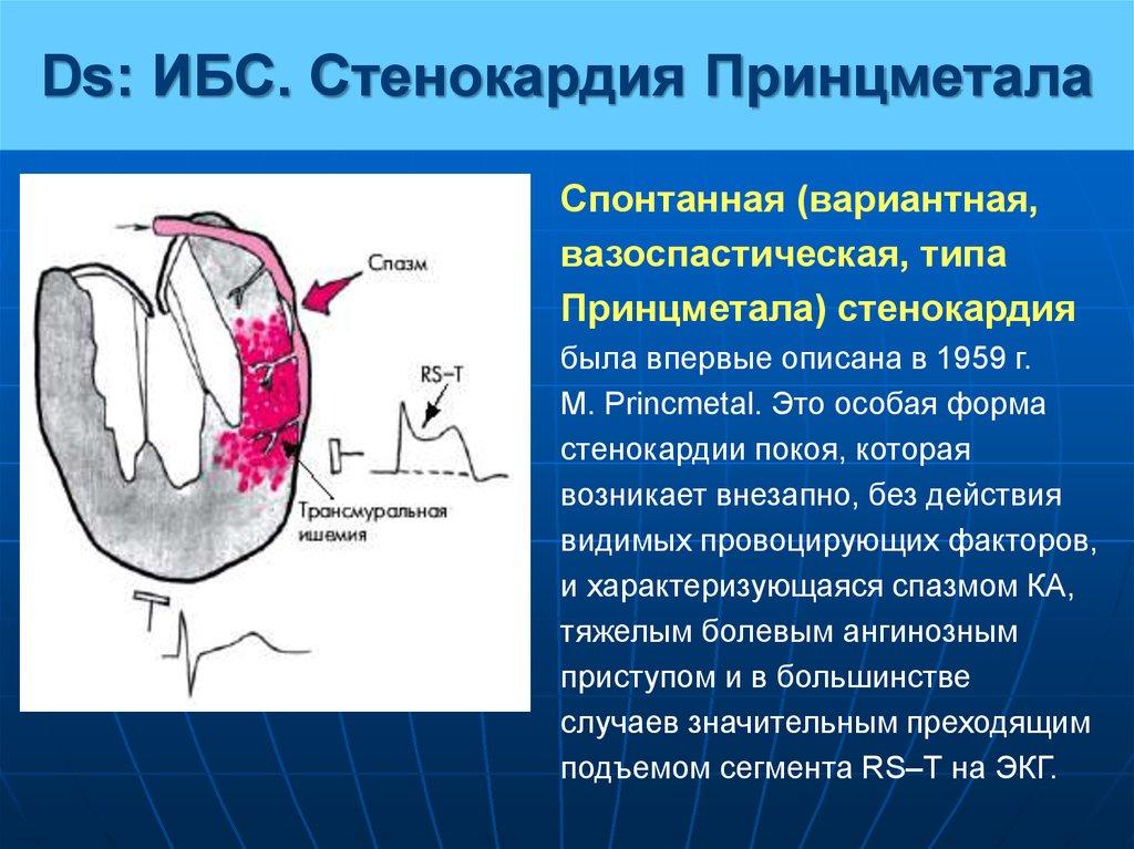 Вазоспастическая стенокардия: симптомы, лечение, профилактика