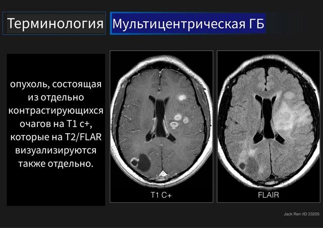 Глиобластома головного мозга ее формы и симптомы: лечение и прогноз