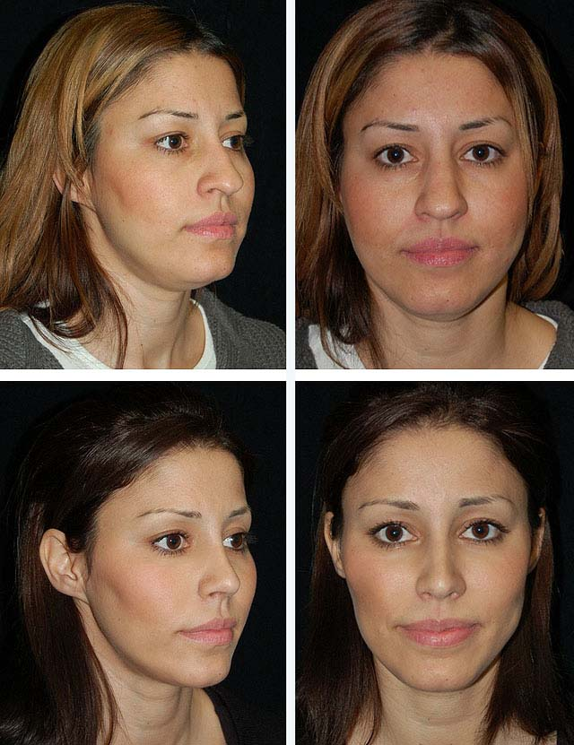 Комки биша — что это такое, фото до и после операции, последствия, минусы удаления