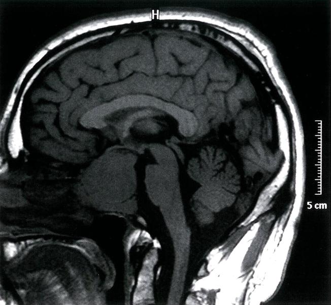 Чем грозит аденома мозга