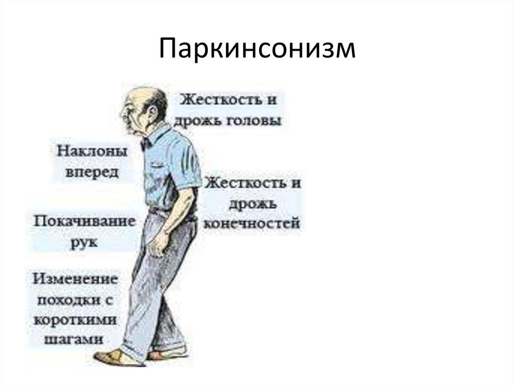 Болезнь паркинсона: симптомы, признаки, лечение