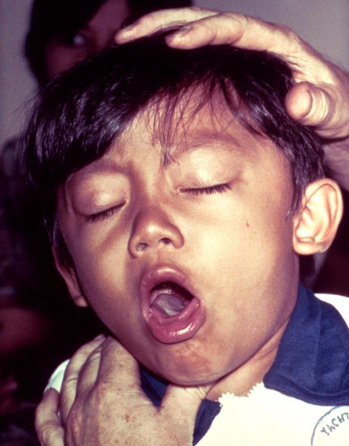 Коклюш - симптомы, лечение, стадии, диагностика, осложнения