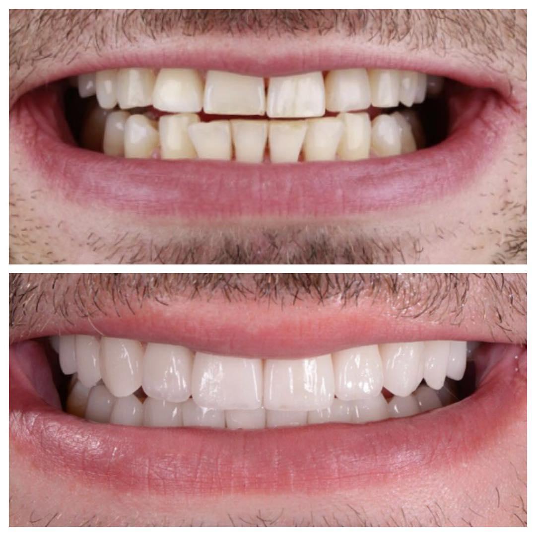 Виниры: что это, как устанавливаются, кому подходят, плюсы и минусы, сколько может стоить установка виниров на зубы?
