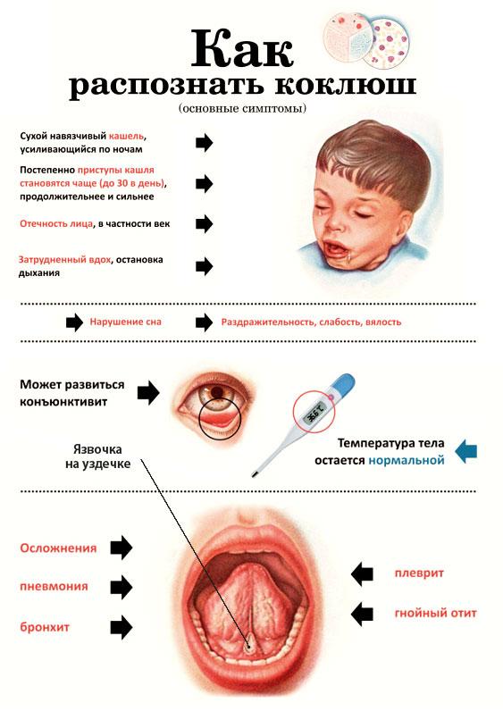 Коклюш: симптомы у взрослых, этапы болезни, лечение и профилактика заболевания