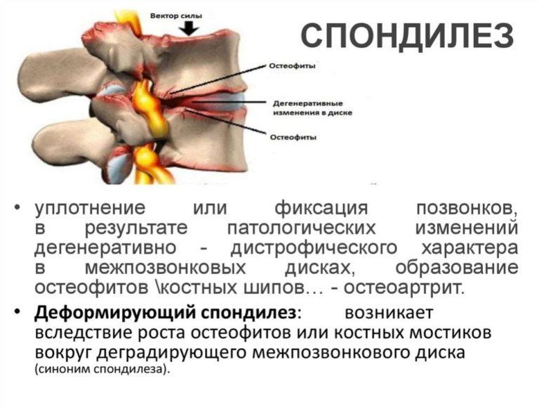 Спондилез и спондилоартроз