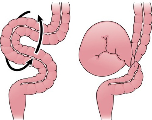 Почему возникает, как выглядит и как лечить долихосигму кишечника?