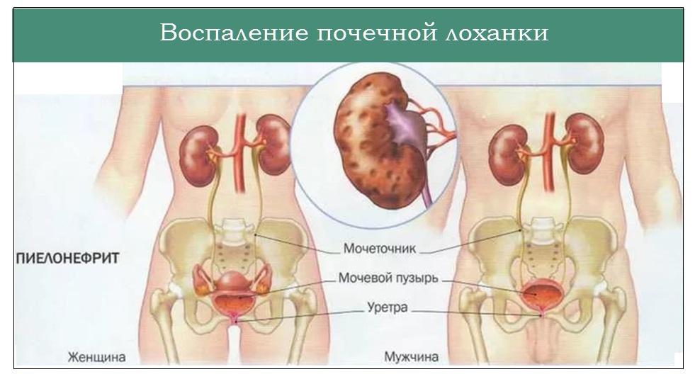 Гидронефроз почек - что это такое, лечение, симптомы, прогноз