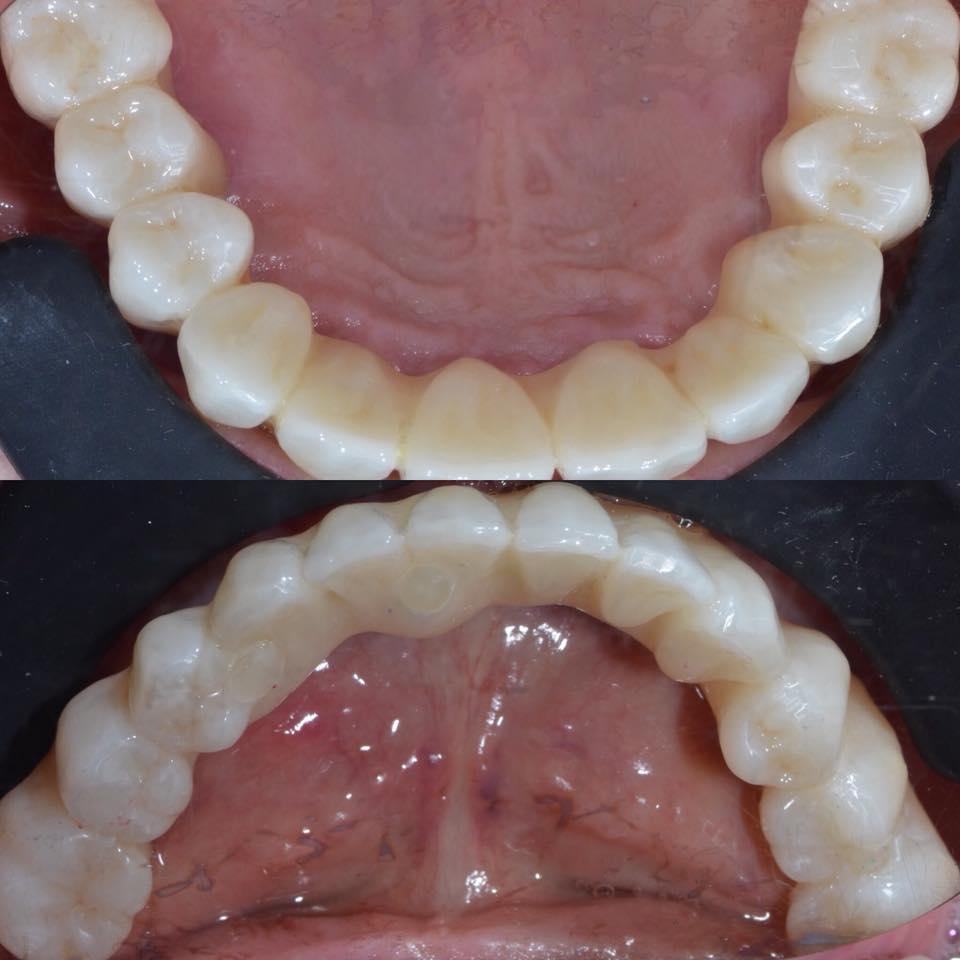 Зубной имплантант - что это такое? установка, цена и отзывы, все за и против