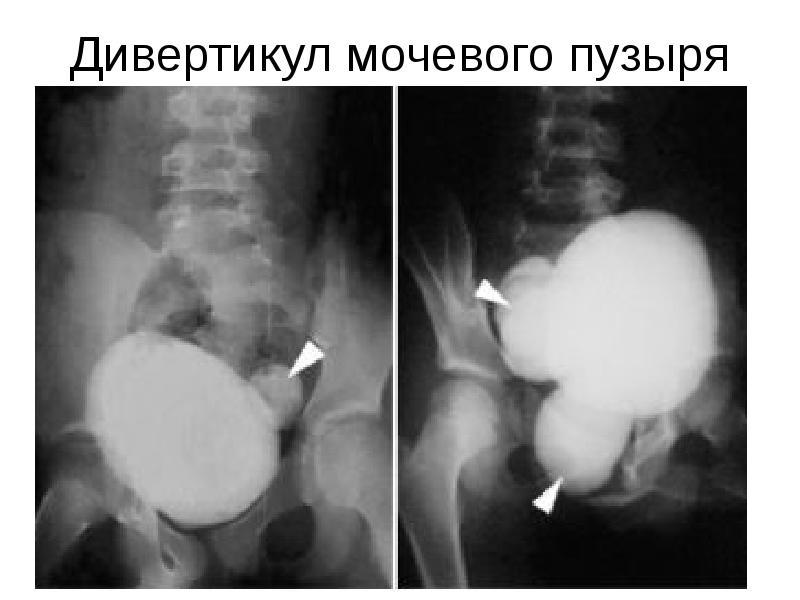 Дивертикул мочевого пузыря: лечение, причины, симптомы