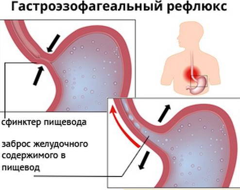 Неэрозивный рефлюкс эзофагит: что это такое, ????⚕️ диагностика и лечение