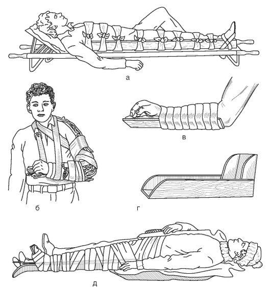 Алгоритм иммобилизация при переломах костей