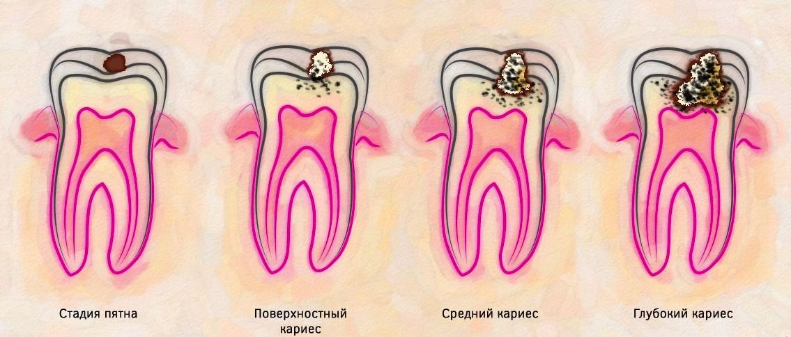 Пульпит зуба: что это такое - причины, виды, симптомы и лечение | «вита-стом»